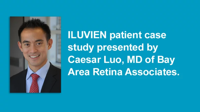 Monocular patient case study presentation by Caesar Luo, MD - video thumbnail